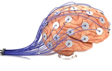 medical sensors on brain
